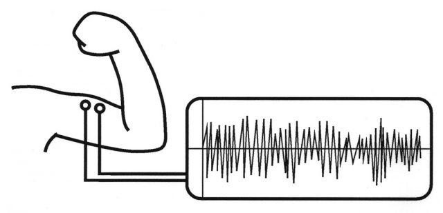 筋電位を波形として描いたものが筋電図。