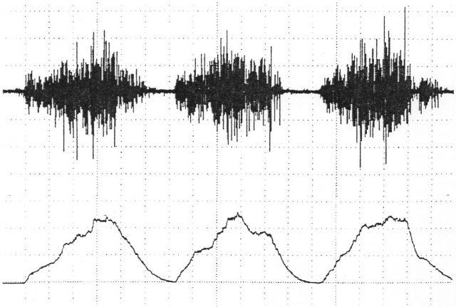 上が通常の筋電図の波形。下は通常の波形をさらに積分アンプを使って処理した波形。